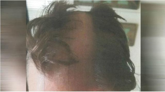 Police Arrest Barber Accused of Snipping Ear, Shaving Bald Patch
