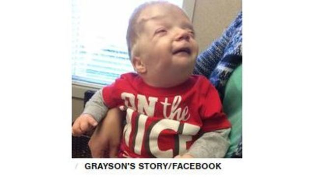Terminally Ill Toddler Was Turned Into Cruel Internet Meme Mom Says